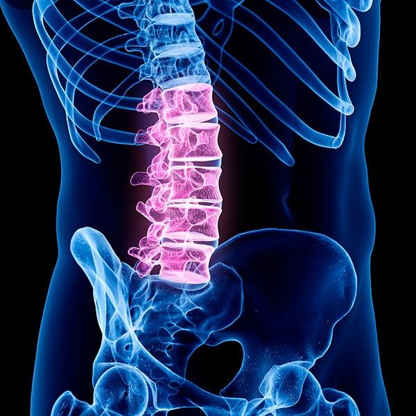 Reabilitação na Coluna Vertebral Imagem 2